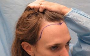 适合秃顶的植发技术 西安新锐国际植发整形医院好不好