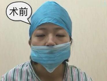 青岛天美整形医院歪鼻矫正有哪些优势 拥有秀挺美鼻