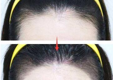 福州科发源植发医院美人尖种植优势有哪些 有风险吗