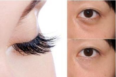 天津植发哪里好 天津科发源植发医院睫毛种植的效果怎么样