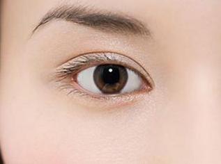 双眼皮种类有哪些 柳州医美整形医院做双眼皮价格