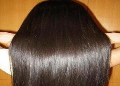 烟台华怡植发技术好吗 头发加密多久能长出来