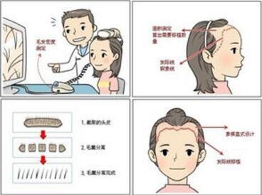 南宁科发源植发医院发际线种植的优势 多长时间恢复?