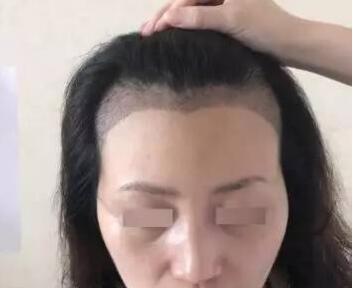 成都瑞丽诗植发医院发际线种植的效果怎么样 摆脱大额头