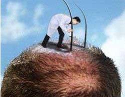 石家庄植发医院哪好 博士园种植头发需要多少钱