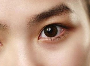 中山华美整形医院开眼角手术效果 造就魅力十足电眼