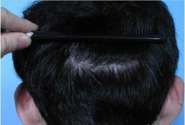 芜湖伊莱美整形医院植发科头发种植需要多少钱