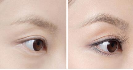 苏州美贝尔整形医院植发科睫毛种植有哪些优点