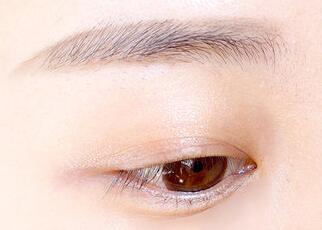 贵阳丽都整形和贵阳华美整形哪家做提眉好 提眉术改善后的效果