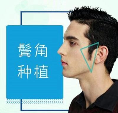 上海新极点毛发移植医院怎么样 鬓角种植提高男人形象