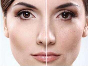 彩光嫩肤有效果吗 重庆超雅整形医院彩光嫩肤的优势