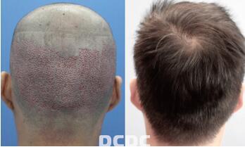 宁波云锦秀植发医院头发加密有哪些优势呢 能够保持多久