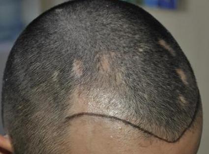 重庆欧亚医院植发价格表 疤痕植发一般多少钱