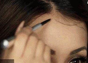 """无锡百年植发医院【6.18植发节嗨""""植""""】发际线种植 美丽只在一线间"""