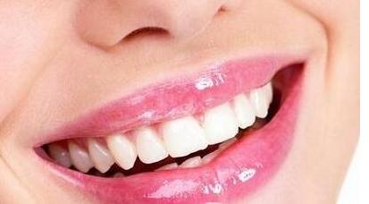 """告别""""笑不露齿""""的曾经 青岛牙齿矫正大概多少钱"""