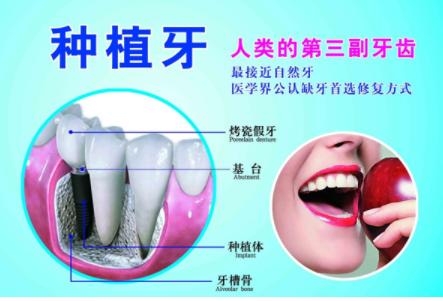 宁波壹加壹口腔医院牙齿种植的优点 得花多少钱