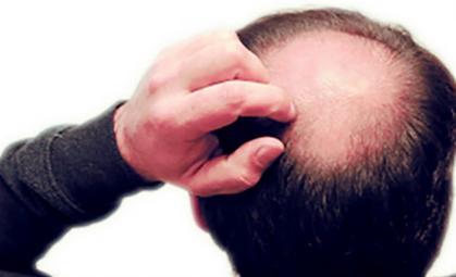 关于头发种植的效果请看这里 北京头发种植价格高吗
