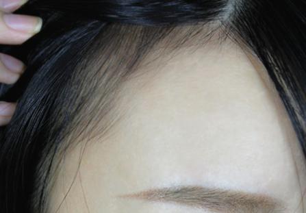 深圳新生植发整形科正规吗 发际线种植后会留疤吗