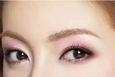 湛江华美整形美容医院开外眼角的特点有哪些 要多久恢复