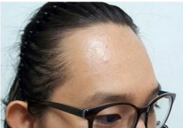 合肥新生植发医院发际线种植的优点有哪些 有危险吗