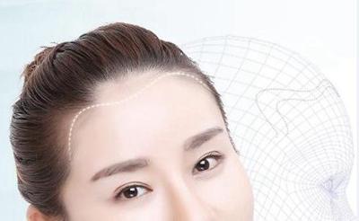 杭州瑞丽诗植发医院种植发际线 解决大脑门发型随意换