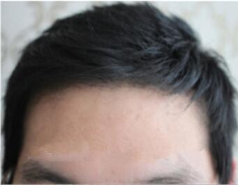 广州雅度植发医院发际线种植的优势 能保持多久呢