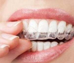 重庆做隐适美牙齿矫正多少钱 隐形矫正让您美的没有负担