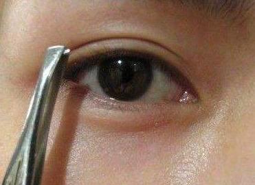 眼袋整容哪种方法好 宁波同仁医院整形科做吸脂去眼袋多少钱