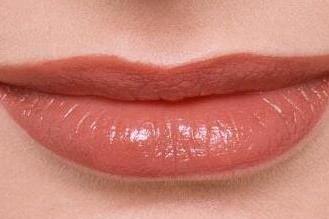 唇裂的原因是什么 北京焕星整形医院唇裂修复种类有哪些
