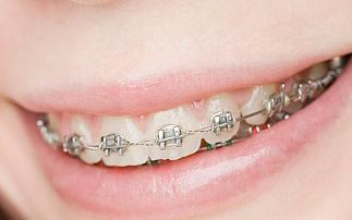 重庆牙齿矫正医院哪家好 重庆铂生门诊部口腔科怎么样
