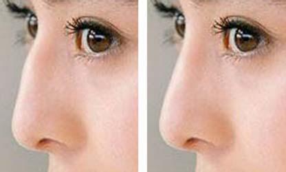 驼峰鼻的矫正方法大致有两种 厦门驼峰鼻矫正多少钱