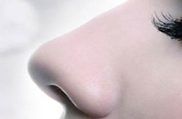 鼻小柱延长的目的是什么 昆明薇莎美容医院鼻小柱延长恢复期