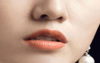 什么是歪鼻矫正术 西安潘朵拉整形医院歪鼻矫正看起来自然吗