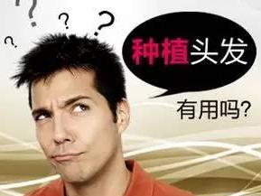 鬼剃头治疗方法哪种好 广州新生植发种植头发需要多少钱