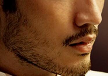 温州伊美尔瑞丽诗植发医院胡须种植的优点有哪些