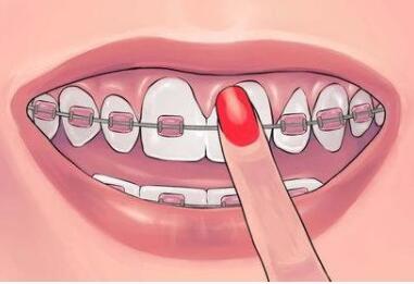 济南伊美尔和济南瑞丽牙齿矫正哪家好 有没有后遗症