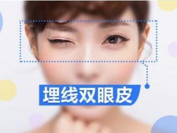 【年中嗨购】双眼皮埋线/重睑+开内眦/告别呆板小眼