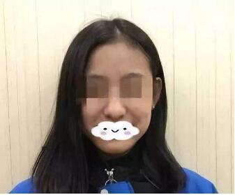 长沙隆鼻修复手术哪家好 长沙星雅整形医院挽救不自信