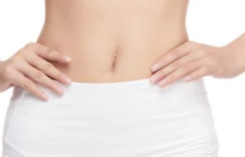 金华亚美【脂肪整形】腰腹吸脂/大腿吸脂/手臂吸脂