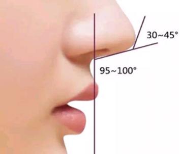 广州粤秀整形医院鼻小柱延长术需要多少钱