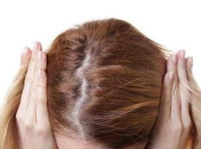 郑州新生植发价格表 头发加密的价格和什么有关系