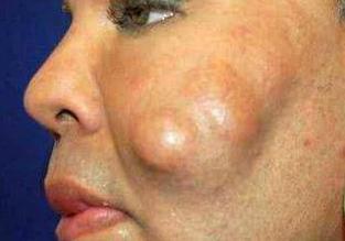 国外女子为贪图便宜 花1.8万元做整容手术 后整容失败