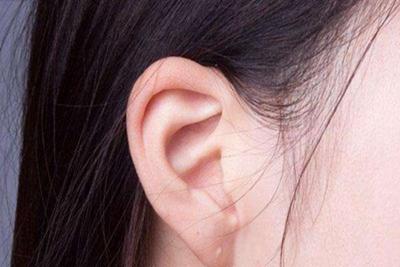 天津时光整形杯状耳矫正的费用是多少 会不会反弹