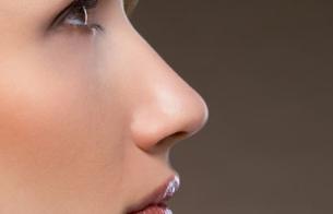 青岛金岛整形医院鼻翼整形优势 鼻翼缩小效果好吗