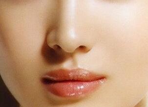 青岛时光做假体隆鼻整形费用多少钱