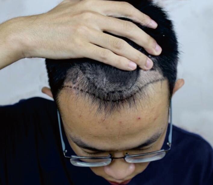 长沙科发源发际线种植 让我摆脱了早秃的风险