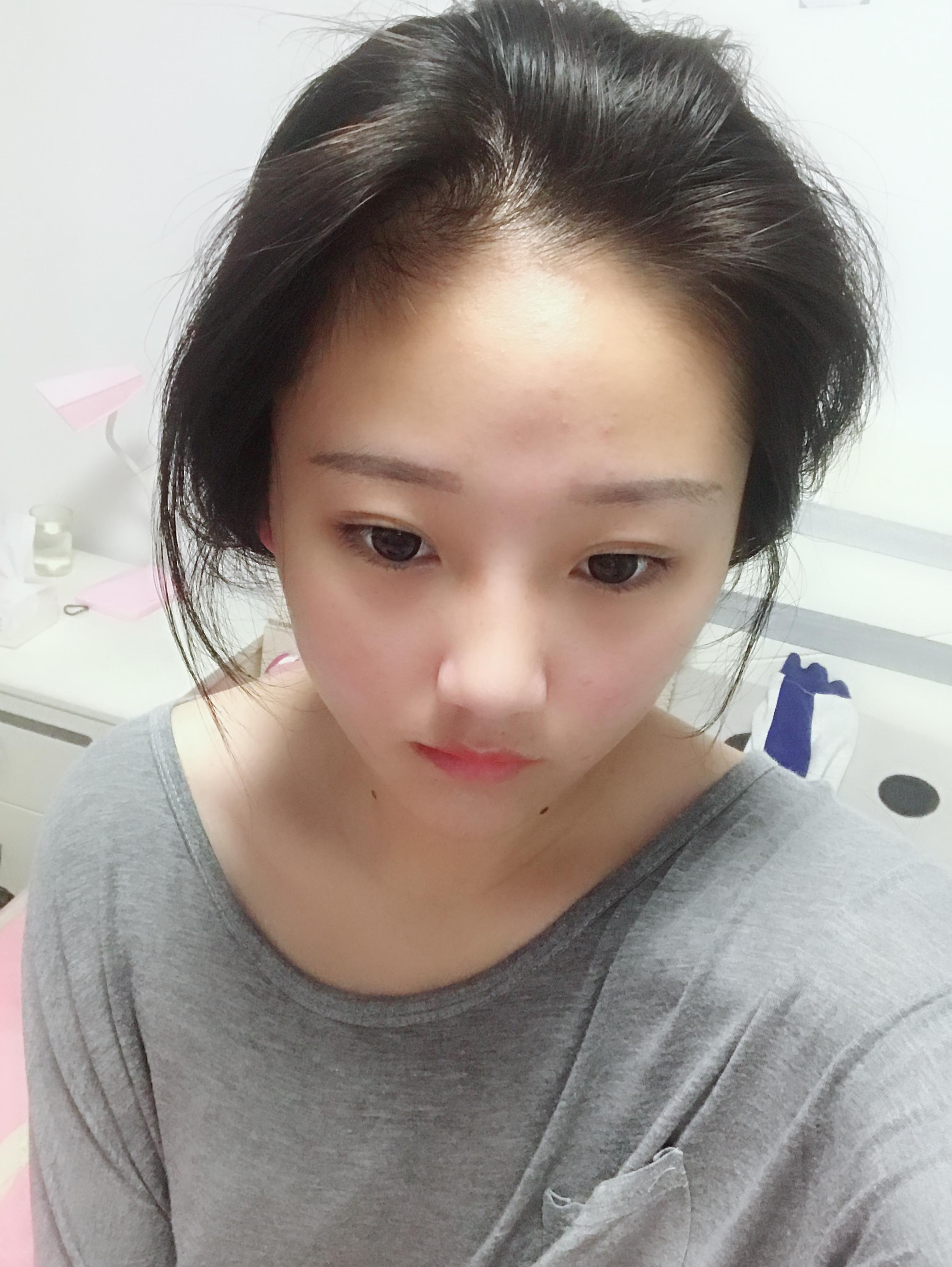 改变发型 改变美丽 记录我在科发源上海植发整形的变美历程