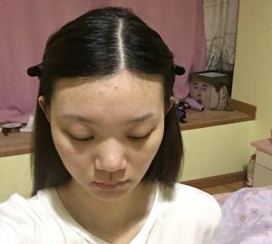 上海华美植发整形医院发际线种植效果 脱发少女的自我拯救