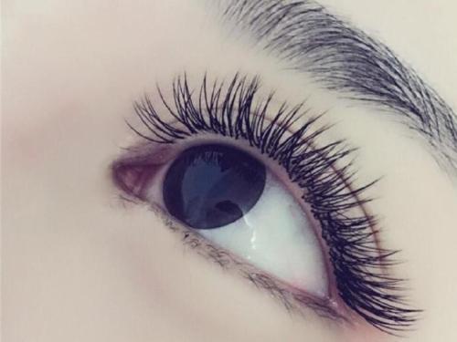 南昌宏昌植发整形医院睫毛种植 艺术种植 眼部更迷人