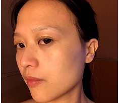 北京同仁植发整形科发际线种植一年后 结果让我大吃一惊
